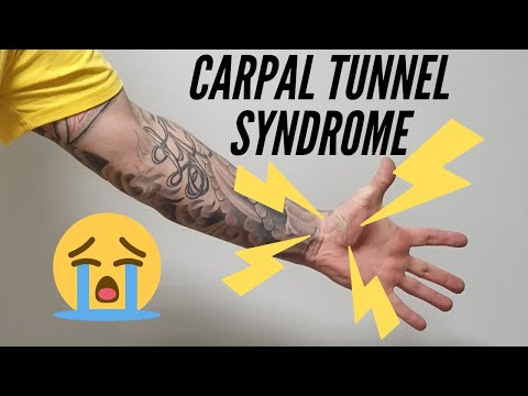 Carpal tunnel syndrom ( CTS ).