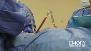 Things To Know Before Liposuction at the Emory Aesthetic Center