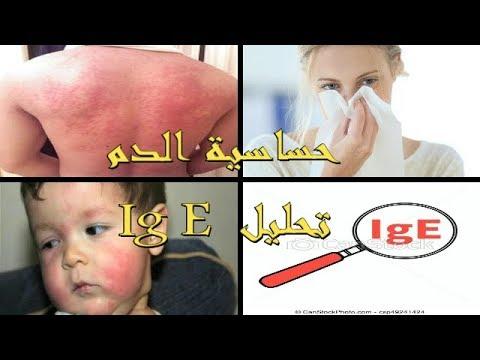 كل ما يتعلق بحساسية الدم الهيستامين وتحليل الغلوبولين المناعي Allergie Et Ig E Youtube