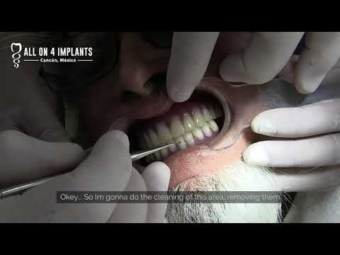 How to clean and give maintenance to All-on-4 dental implants!