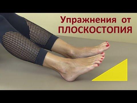 Поперечное плоскостопие 1 степени лечение в домашних условиях