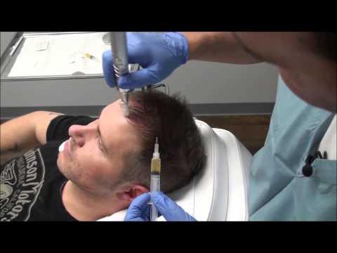 Hair Growth Birmingham AL   Treatment for Hair Loss Women Men