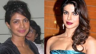 Bollywood Actresses who underwent SKIN LIGHTENING Surgery