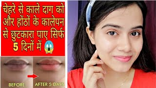 How To Remove Lip Darkening and Pigmentation | Sayne Arju