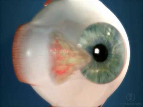 Птеригиум глаза - что это такое, причины возникновения