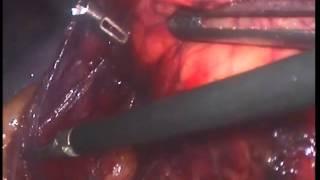 Лапароскопическое удаление почки