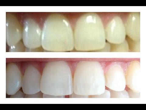 Como Clarear Os Dentes 2 Youtube