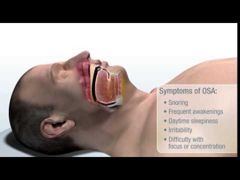 Neue Therapie für obstruktive Schlafapnoe wird erstattungsfähig / Anwendungsbeobachtung startet in ausgewählten Kliniken