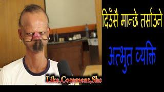दिउँसै मान्छे तर्साउने अत्भुत व्यक्ति (Yagya Bahadur Katwal)