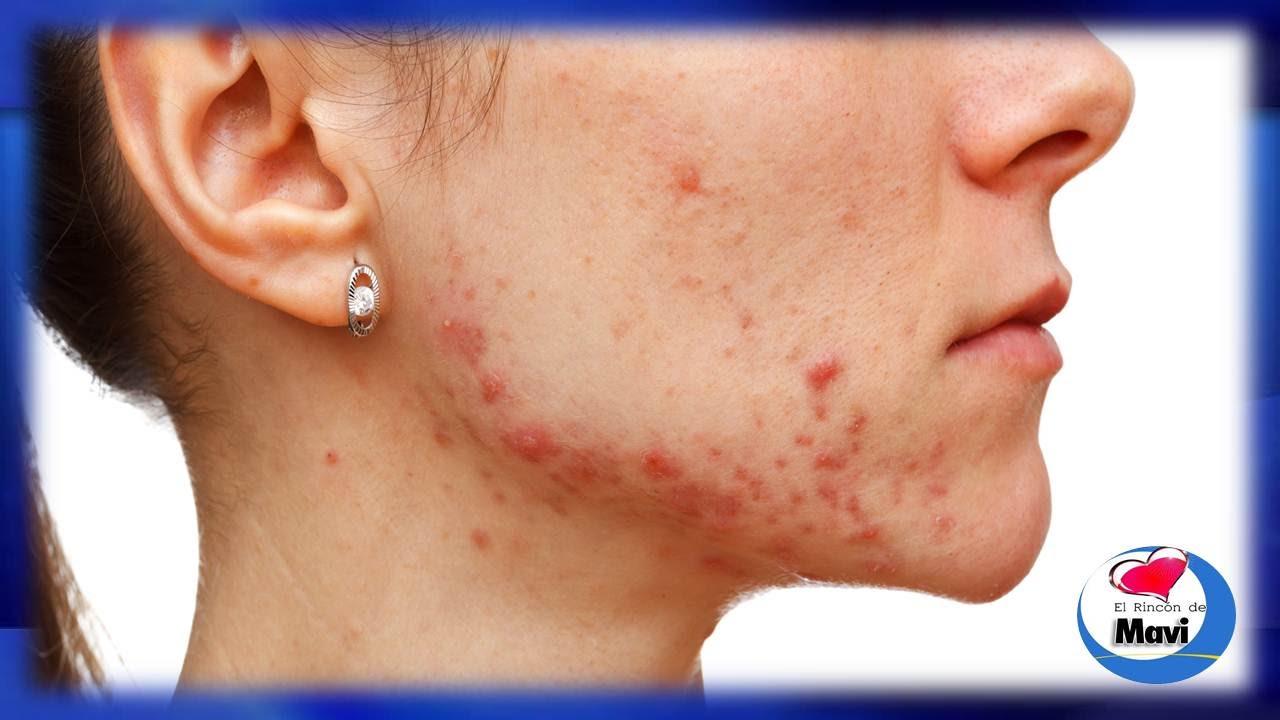 Como tratar el acne quistico con tratamientos naturales  YouTube # Wasbak Zit Los_081955
