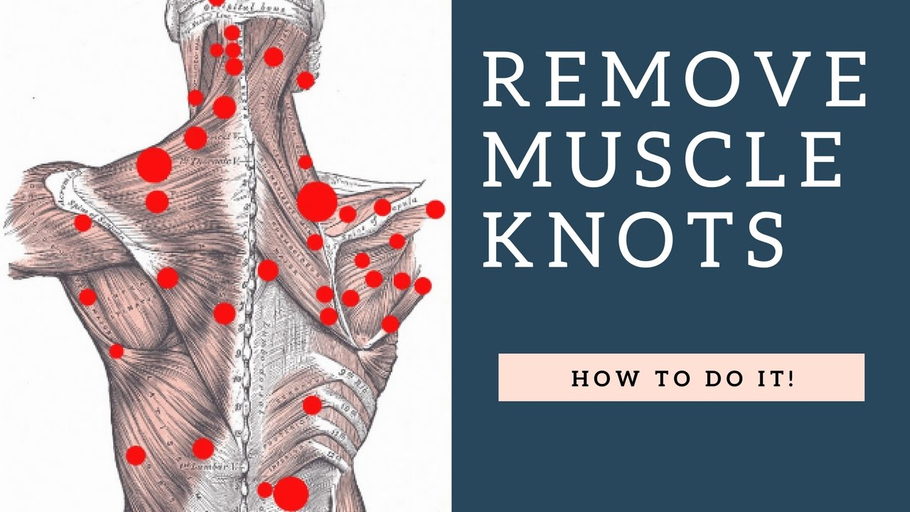 BEST Way To Fix Shoulder Knots Myofascial Trigger Points In Your Trapezius Muscle Stop Pain