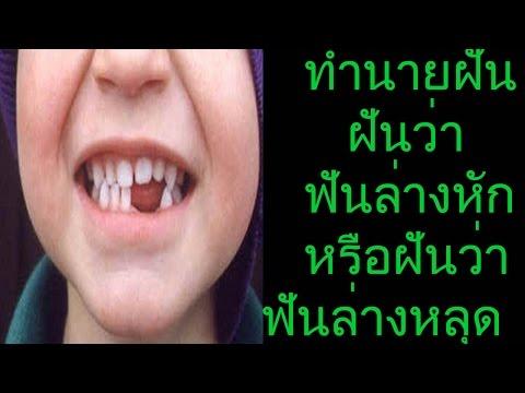 ฝันว่าฟันล่างหักหรือฝันว่าฟันล่างหลุด (พร้อมเลขเด็ด)