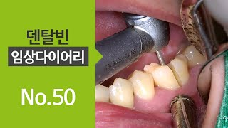 Extraction \u0026 Immediate implant placement in lower molar [#Dentalbean]