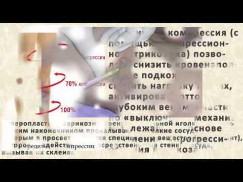 Смотреть Гепариновая Мазь При Тромбофлебите - Гепариновая Мазь При Варикозе