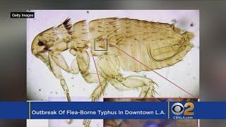 Downtown LA Hit With Outbreak Of Flea-Borne Typhus