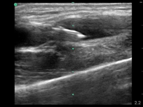 Image result for long axis ultrasound guided IV