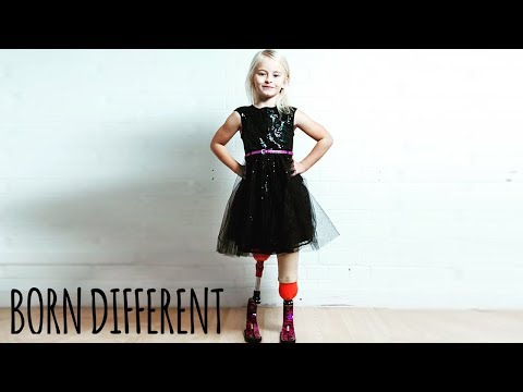 The Little Girl With No Legs And Big Dreams | BORN DIFFERENT