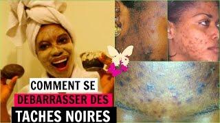 COMMENT SE DEBARRASSER DES TACHES NOIRES
