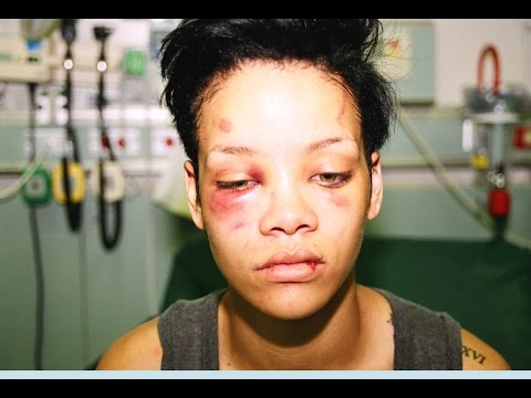 Top 10 Celebrities Who Were Victims Of Domestic Violence