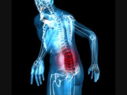 spondylarthrite arthralgie, genou douleur au genou