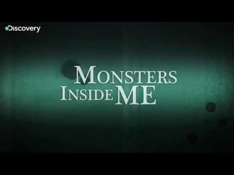 Can tab stuck in the throat monsters inside me ep 8 youtube for Take me fishing org