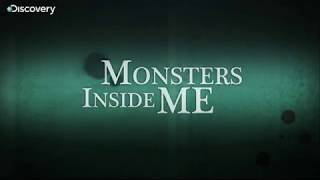 Can Tab Stuck in the Throat- Monsters Inside Me Ep 8