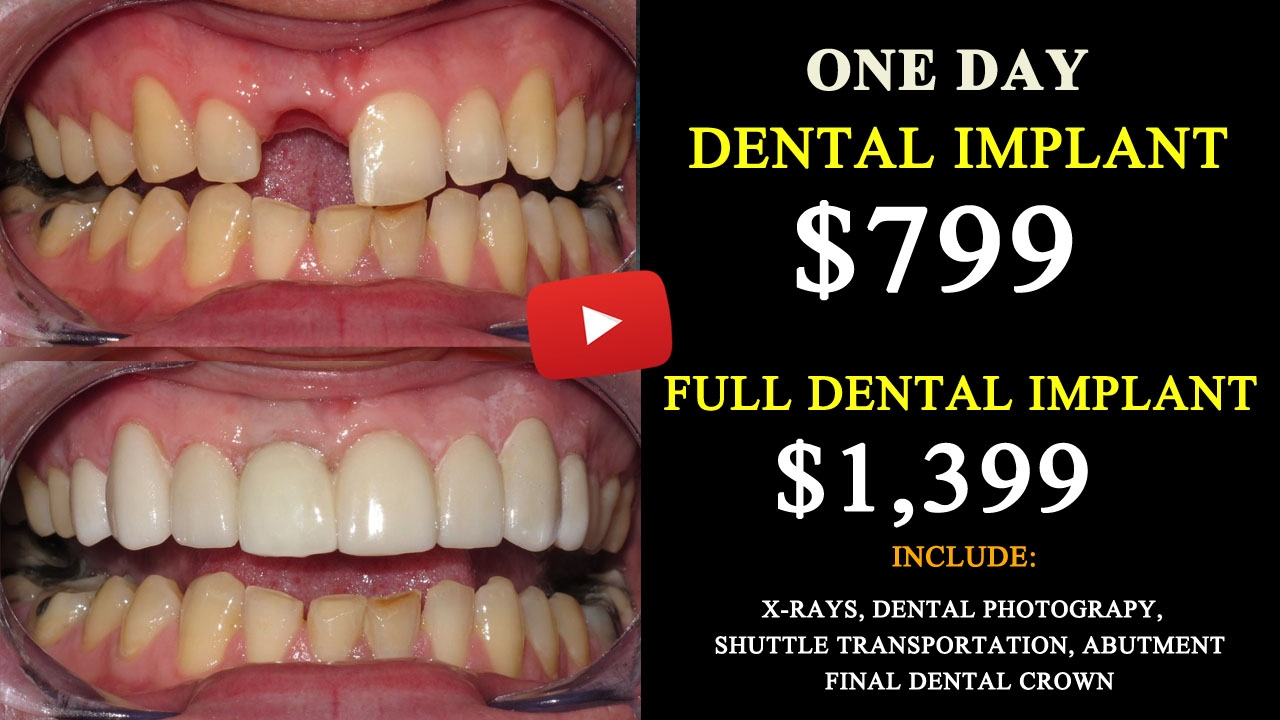 How To Save Up 75 On Dental Implants In Tijuana Mexico
