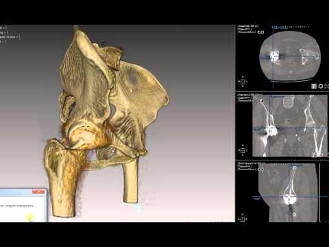 Остеоартроз тазобедренного сустава 1, 2, 3 степени — лечение