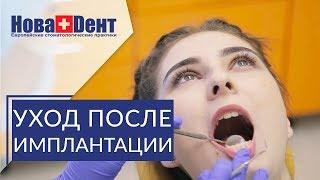 🔴 Важные рекомендации после имплантации зубов. Рекомендации после имплантации. НоваДент. 12+