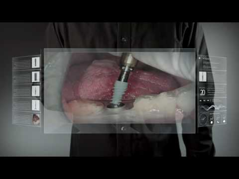 Biotec implant GmbH