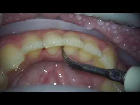 Удаление зубного камня , чистка зубного камня , Air Flow чистка , лечение зубов , лечение кариеса