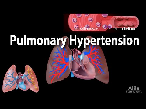 Pulmonary Hypertension, Animation
