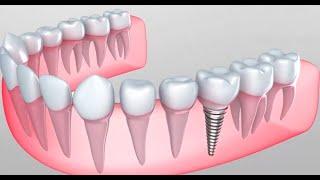 Почему имплантация зубов лучше обычного протезирования?(, 2015-08-02T15:20:24.000Z)