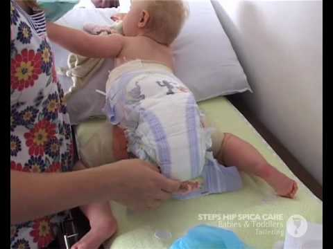 Hip Spica Baby Toddler Toileting Mp4 Youtube