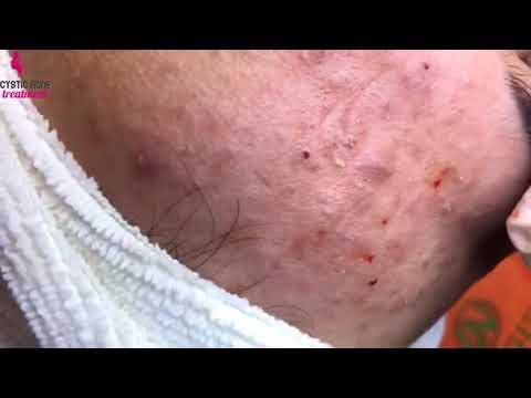 Cystic Acne Treatment Dermatologist. How To Remove Cyst Acne Treatment At Home