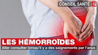 Les hémorroïdes : aller consulter lorsqu'il y a des saignements par l'anus