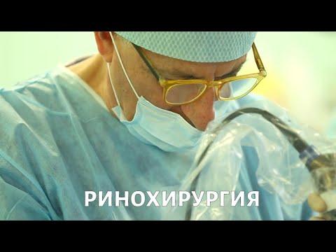Медицина будущего. Ринохирургия | Телеканал «Доктор»