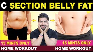 C- SECTION COMPLETE BELLY FAT WORKOUT || HOME WORKOUT|| FAT LOSS