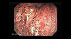 Endoscopia de Gastritis Aguda Severa