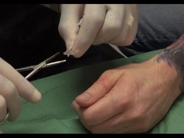 3d Silicone Star Implant On The Thumb Body Modification Youtube