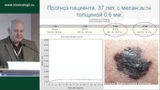 Особенности меланомы кожи в России (Л.В. Демидов)(, 2014-11-11T06:12:23.000Z)