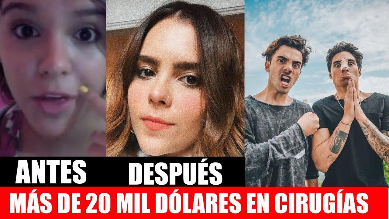 Alejandra garcia antes y despues