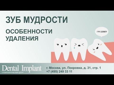 Прорезывание зубов у детей: порядок и сроки, симптомы и