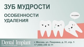 Удаление зуба мудрости 18+