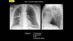 Masterclass Prof  Cáceres  - Endobronchial lesions