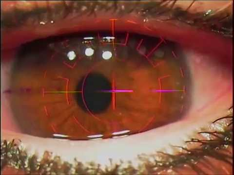 Cirurgia Refrativa a Laser - LASIK