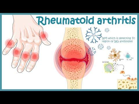 Realities of Rheumatoid Arthritis Symptoms Video Series