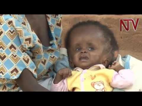 Health Focus: Hydrocephalus and how to treat the ailment