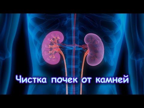 Мочекаменная болезнь. Камни в почках, мочеточнике, мочевом