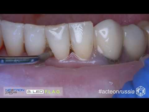 Как чистят камни на зубах ультразвуком